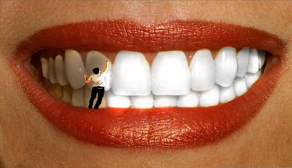 Безопасно ли отбеливание зубов новые фото