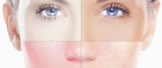 Как правильно ухаживать за кожей лица. Основные проблемы организма оставляют свой отпечаток именно на ней.