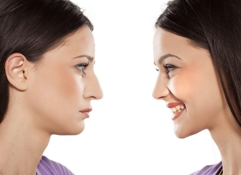 Двойной подбородок как причина плохого настроения