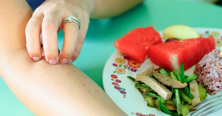 Аллергия и продукты питания