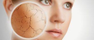 Маски для сухого типа кожи. Поговорим о разновидностях масок и как их приготовить.