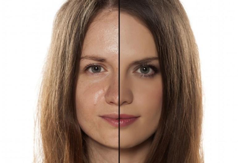 Этапы и правила ухода за жирной кожей