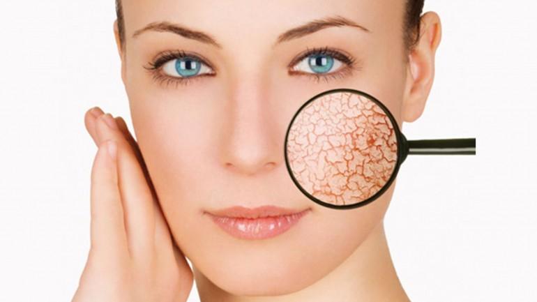 Чего не надо делать, если кожа страдает от акне или единичных высыпаний