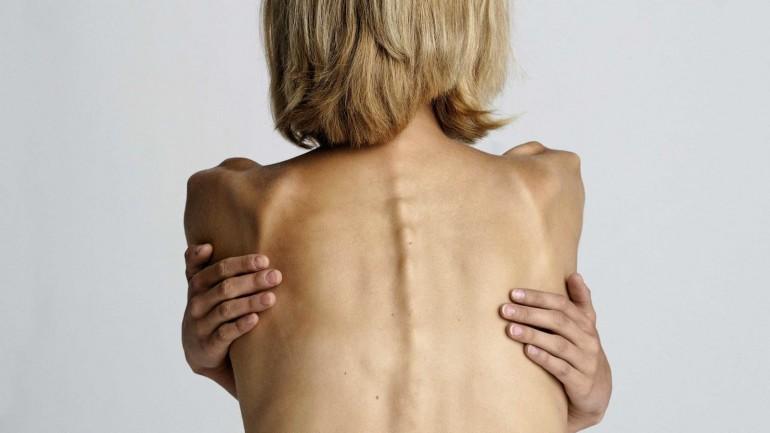 Анорексия - похудение ценой жизни