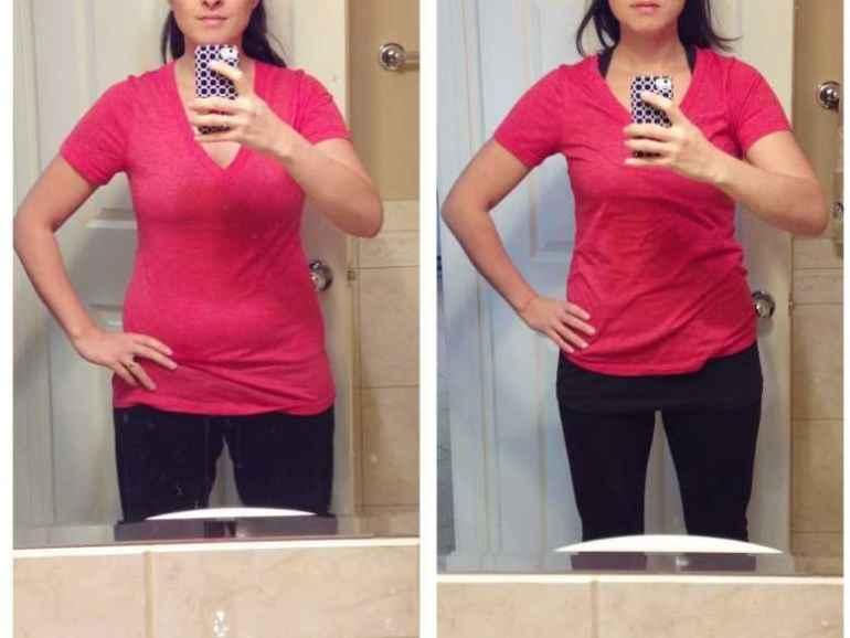 Почему быстрое похудение может испортить внешний вид