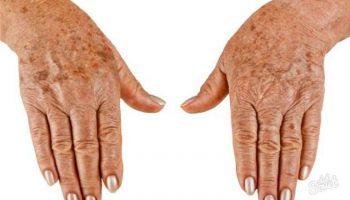 Как приготовить маску с витамином А от пигментных пятен на руках