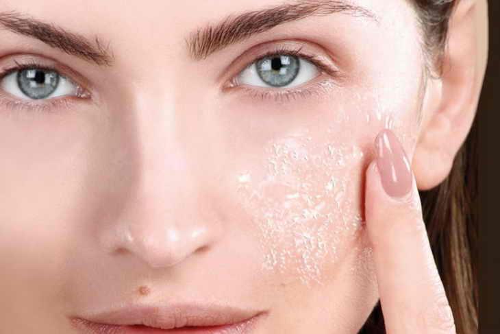 Сухая кожа лица: что делать в домашних условиях