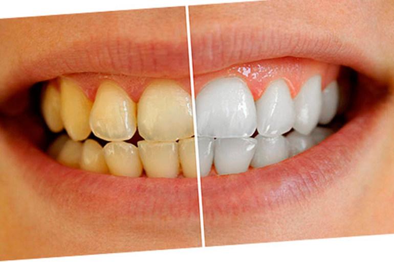 Отбеливаем зубы в домашних условиях быстро и без вреда