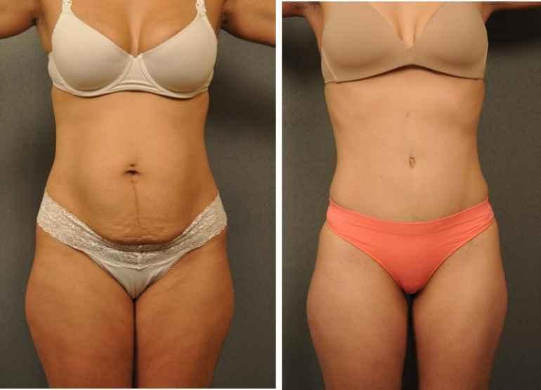 Обвис живот после похудения: как убрать его с помощью питания